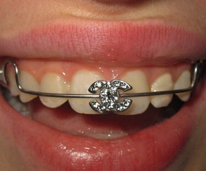 chanel, braces, and fashion image
