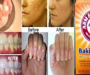 baking soda uses image