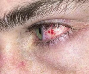 blood, eyes, and tumblr image
