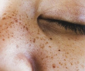 aesthetics and freckles image