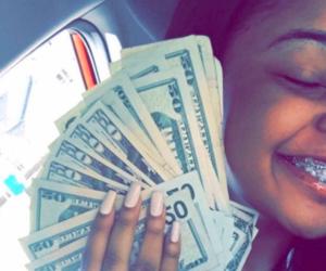 money and braces image