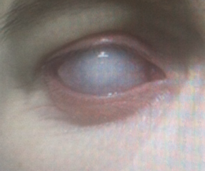 eye, pain, and black and white image