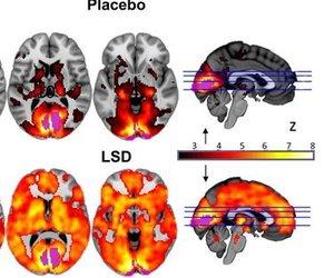 brain and lsd image
