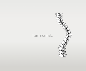 scoliosis image