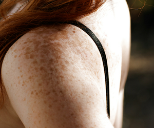freckles, skin, and cute image