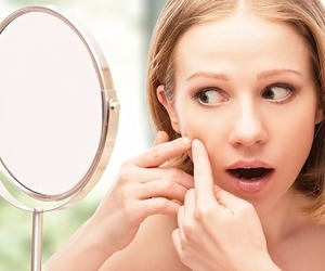 acne, PIMPLES, and beauty image