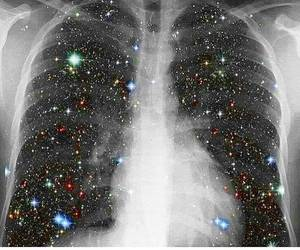lungs, star, and space image