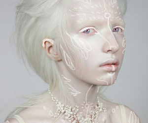 albino, white, and albinism image