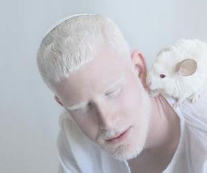 albino, man, and boy image
