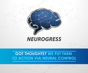 prosthetic limbs, neurons, and internet of things image