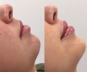 chin, inspo, and skin image
