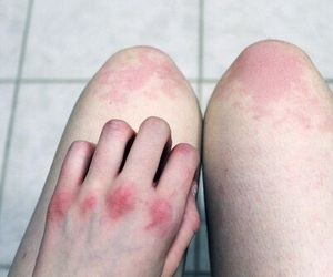 pale, skin, and bruise image