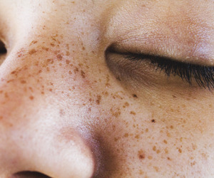 aesthetic, freckles, and photography image