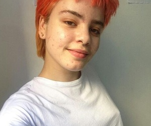 acne, body positive, and girls image