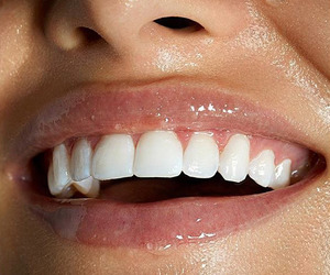 lips, teeth, and white image