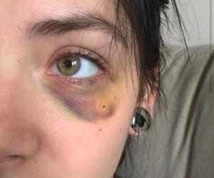 bruises, eye, and purple image
