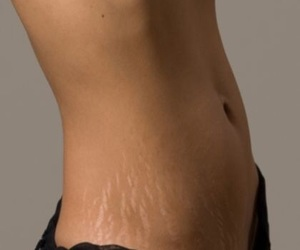 beautiful, skin, and stretch marks image
