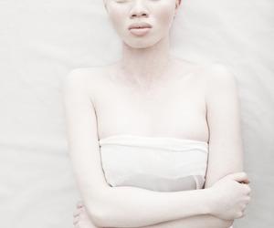 albino, portrait, and white image