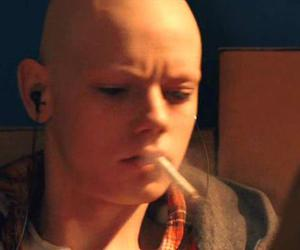 bald, thomas sangster, and cancer image