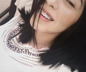 bracket, girl, and smile image