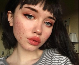 acne, article, and out image