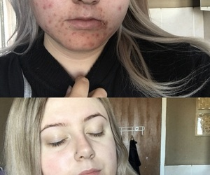 acne, glowing, and healthy image