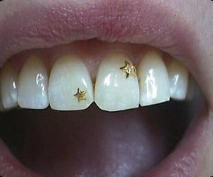 stars, lips, and teeth image