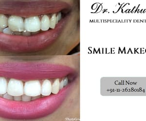 smile makeover and composite bonding image
