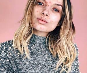 acne, beautiful, and feminist image