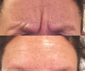 hair removal, laser tattoo removal, and lip injections image