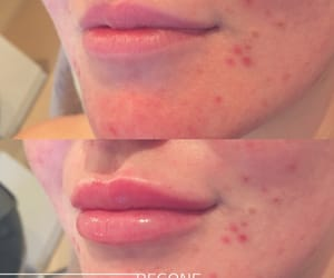lip injections, laser hair removal, and long term hair removal image