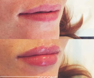 hair removal, lip injections, and laser hair removal image