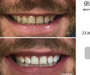 teeth whitening and zoom advanced whitening image