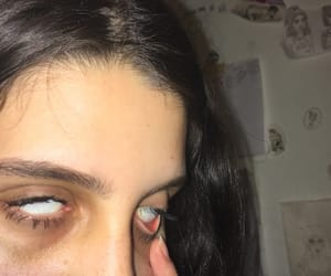 dark circles, dead, and depressed image