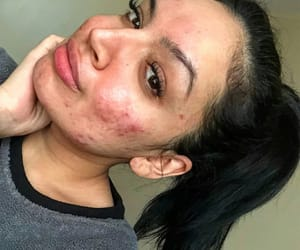 acne, beauty, and gorgeous image