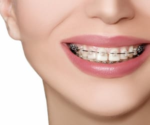clear braces aurora and clear braces toronto image
