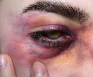 bruise and eyes image
