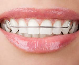 braces, retainers, and clear retainers image