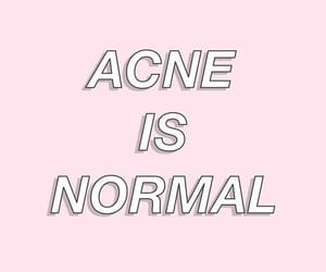 acne and body positivity image