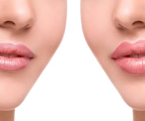 lip injections, juvederm lips cost, and juvederm under eyes image
