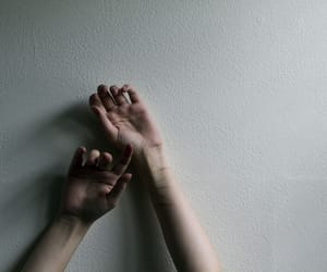hands and scars image