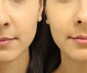 juvederm, lip injections, and lip filler image