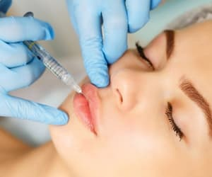 lip injections, juvederm, and lip augmentation image
