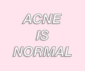 acne, diet, and how to image