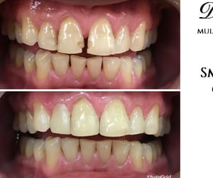 composite bonding and smile makeover india image