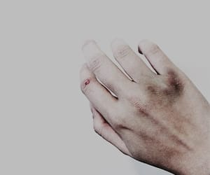 aesthetic, bruise, and simon lewis image
