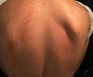 man, scars, and +18 image