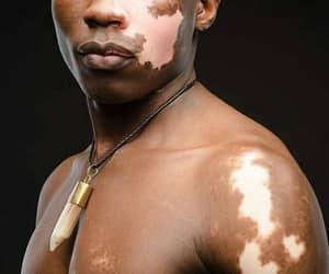 vitiligo, vitiligoworld, and beautyiseverywhere image