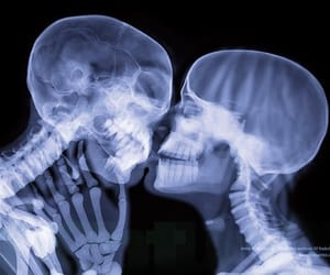 kissing, skeletons, and x-ray image