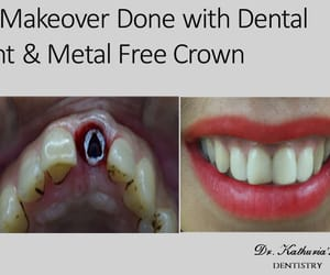 smile makeover and dental implants image